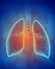 CHILD research finds Lung Clearance Index effective at detecting infant lung problems